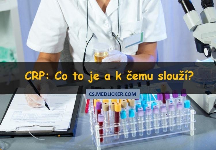 Diagnostický test CRP: co to je a k čemu slouží