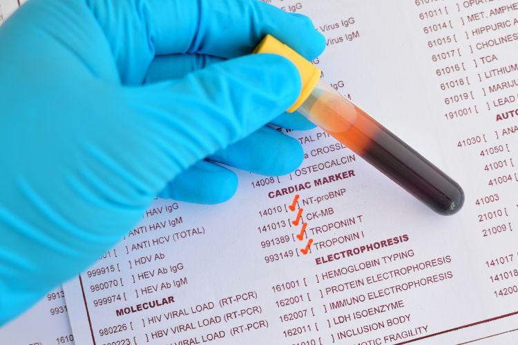 Krevní testy jako diagnostika celiakie