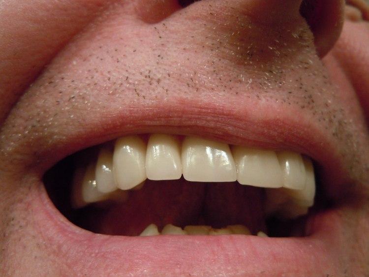 Otevřená ústa se zuby