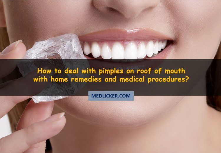 How to Deal with Pimples on Roof of Mouth