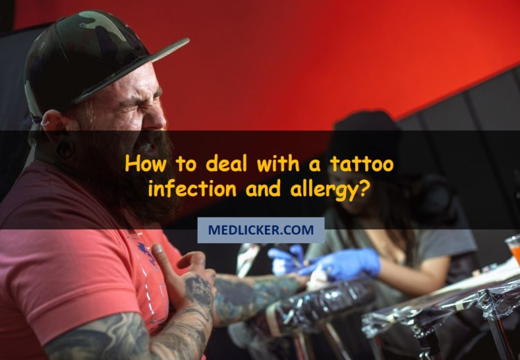How to cure an infected tattoo and tattoo ink allergy?