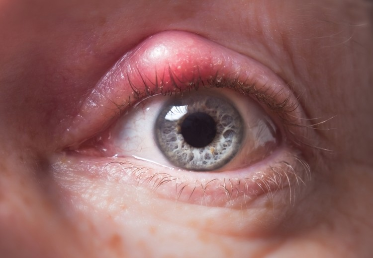 What causes red eyelids?