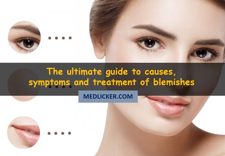 How to get rid of blemishes? The complete guide to types, causes and removal of discolored marks on skin
