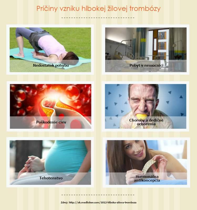 Hlboká žilová trombóza - príčiny a infografika