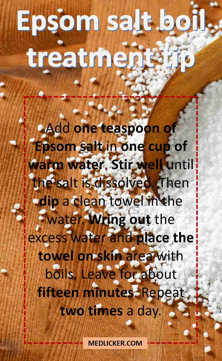 What Causes Boils And How To Treat Them At Home