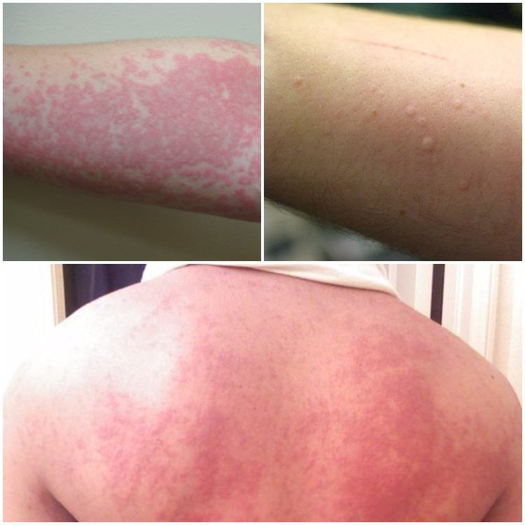 Hives on back and forearm