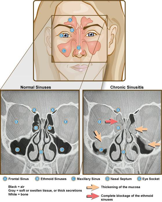 Sinuses and chronic sinusitis