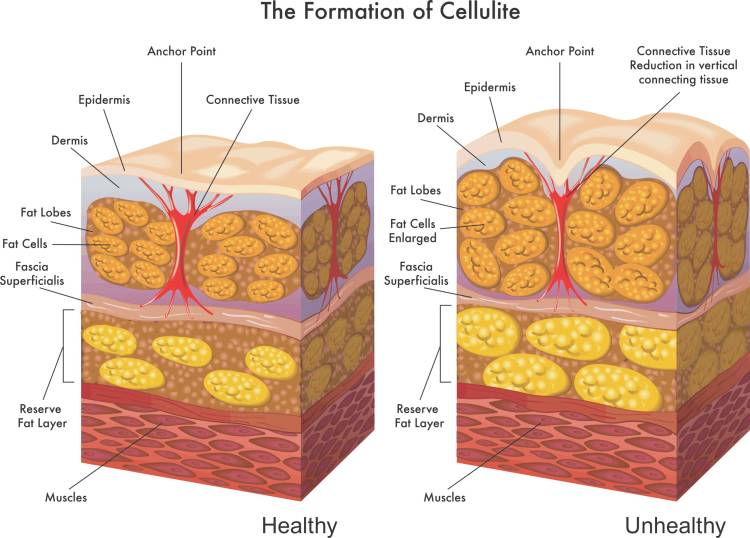 Formation of cellulite explained