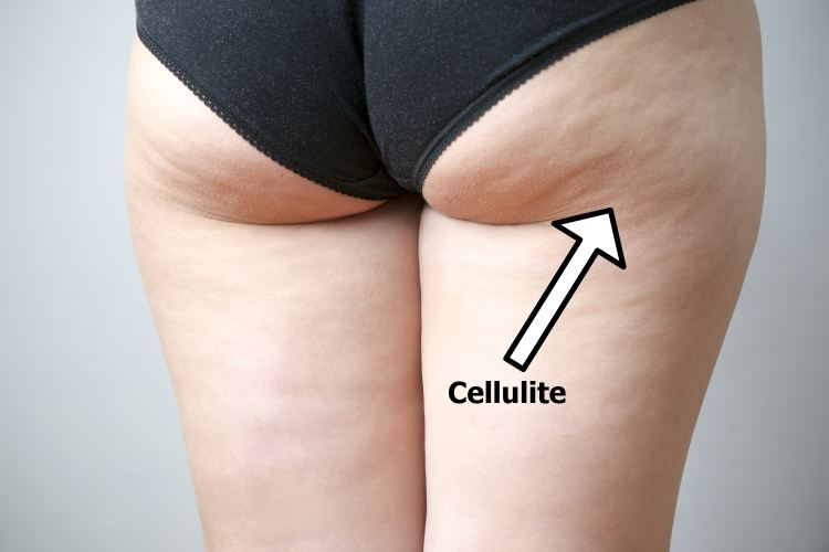 Cellulite on female hips