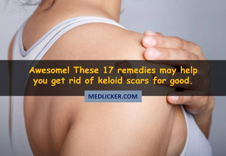 Awesome! These 17 medical and home remedies may help you get rid of keloid scars!