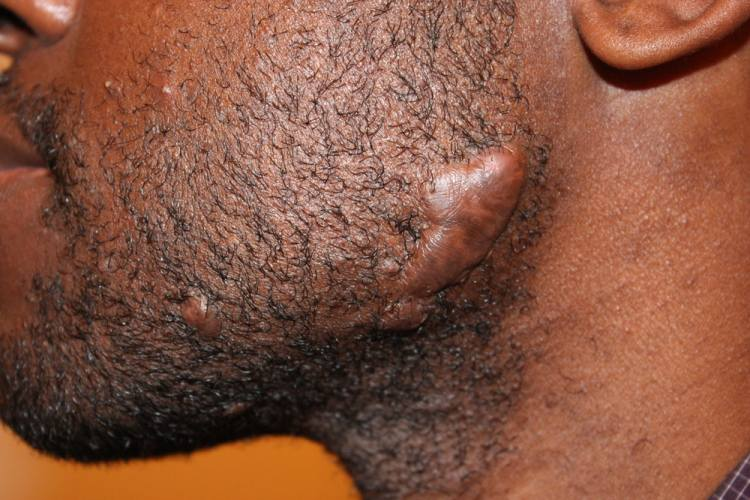 A keloid scar on face