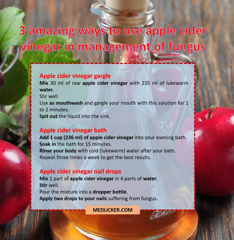 Three ways to use apple cider vinegar in treatment of mycoses