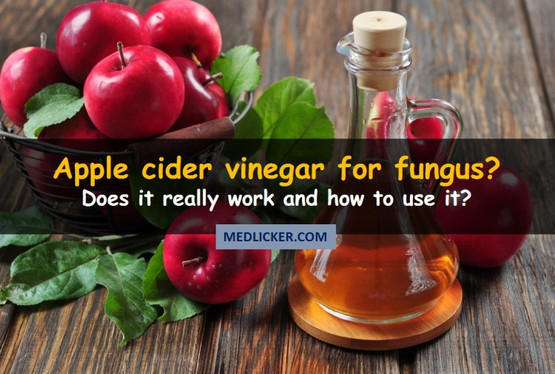 How to Use Apple Cider Vinegar in Treatment of Fungal Infections?
