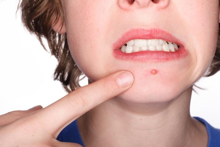 Vřídek (akné) na bradě dospívající dívky