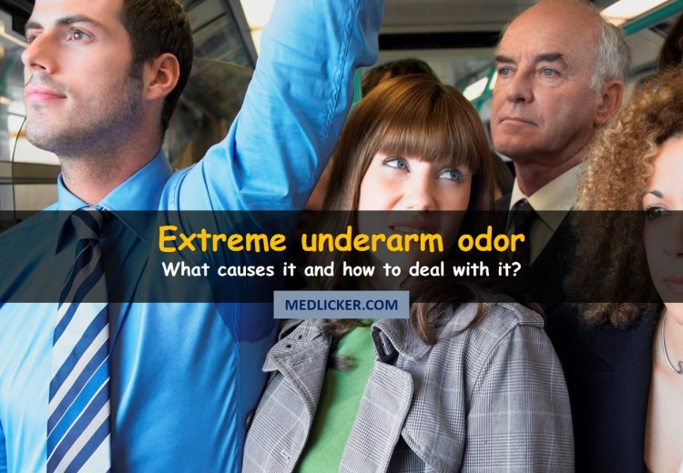 What causes armpit odor and how to get rid of it?