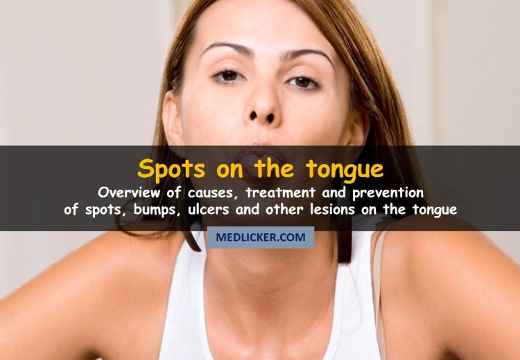 Why You Get Spots On Tongue And How To Get Rid Of Them