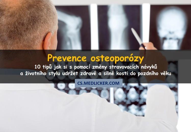 Prevence osteoporózy aneb jak si udržet silné a zdravé kosti do pozdního věku?