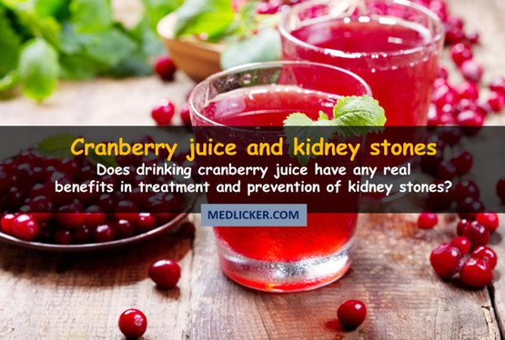 Is Drinking Cranberry Juice For Kidney Stones Any Good?