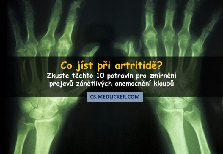 10 potravin, které jíst při revmatoidní artritidě a osteoartróze