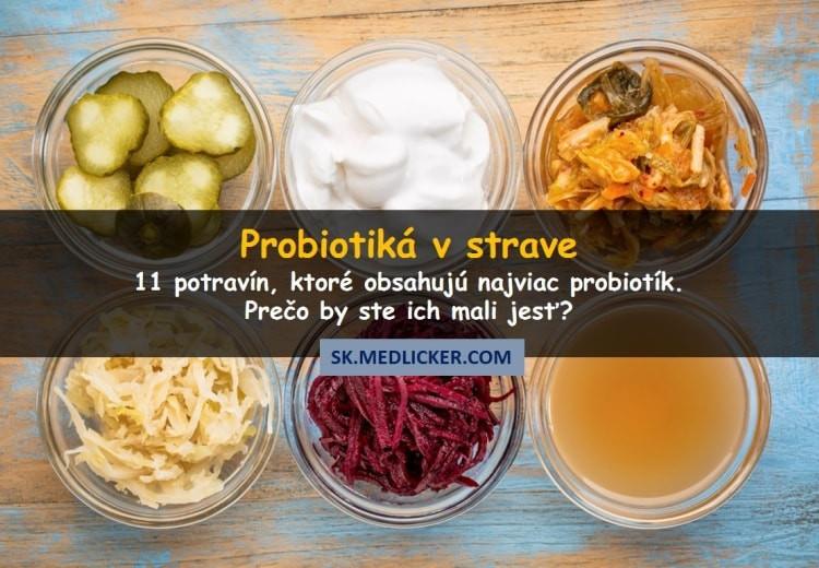 Aké sú najlepšie probiotické potraviny? Skúste tieto!