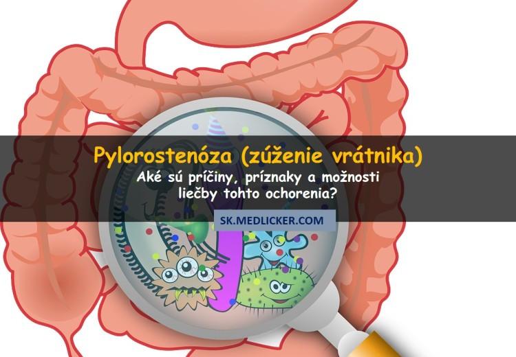 Pylorostenóza (zúženie vrátnika)