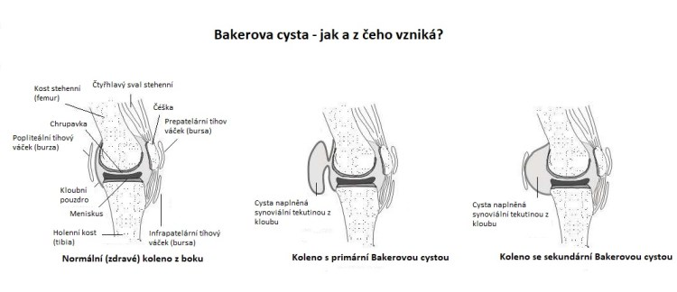 Anatomie kolene a Bakerova cysta