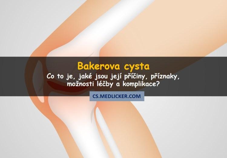 Co je Bakerova cysta, jaké jsou její příčiny, příznaky a možnosti léčby?