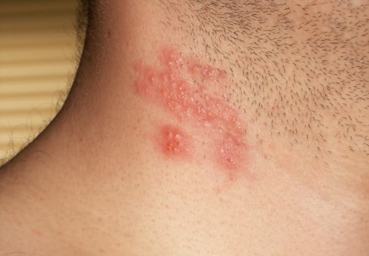 Pásový opar (herpes zoster) na krku