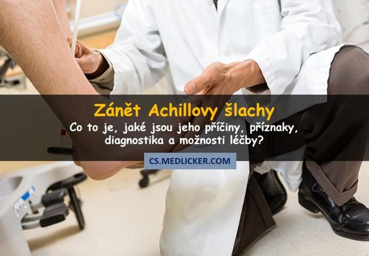 Co je zánět Achillovy šlachy, jak se projevuje a léčí?