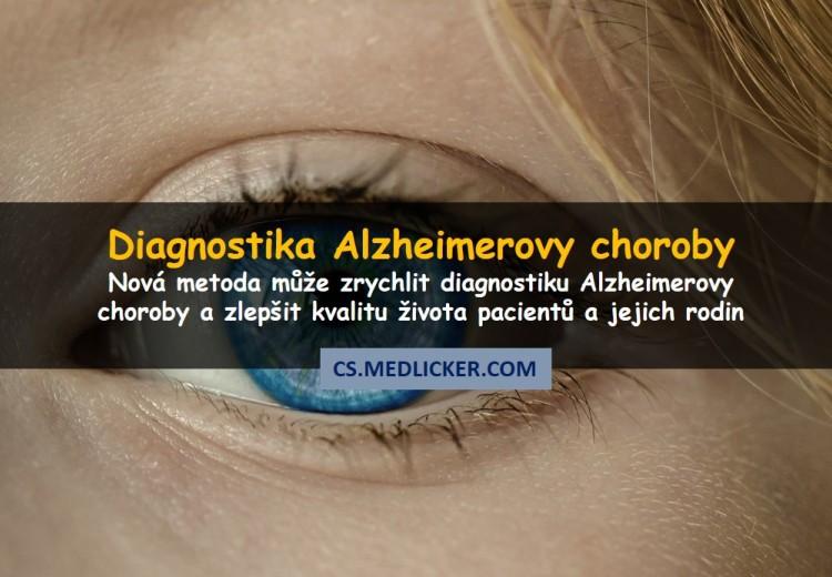 Oční vyšetření dokáže během několika sekund diagnostikovat Alzheimerovu chorobu