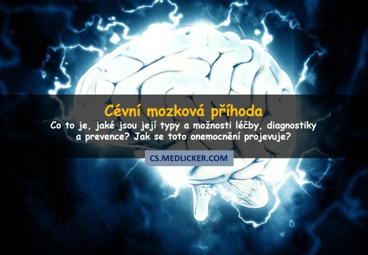 Vše co potřebujete vědět o cévní mozkové příhodě