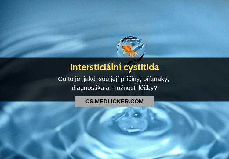 Intersticiální cystitida (syndrom bolestivého měchýře): vše co potřebujete vědět