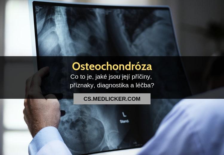 Osteochondróza a její léčba