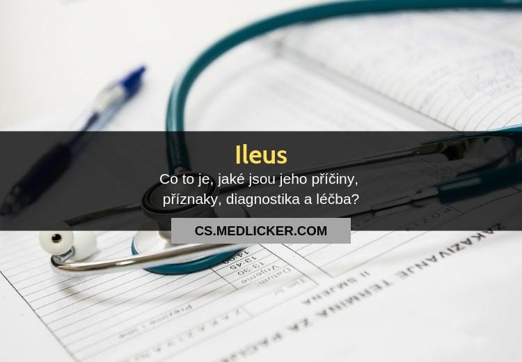 Ileus (neprůchodnost střevní): vše co byste měli vědět?