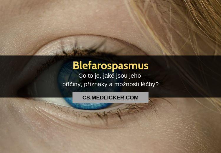 Blefarospasmus: příčiny, příznaky, diagnostika a léčba