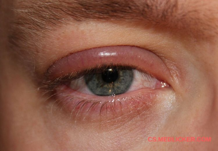 Takto může vypadat blefaritida neboli zánět očního víčka