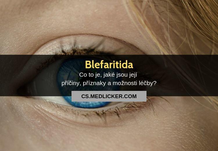 Blefaritida: vše co potřebujete vědět