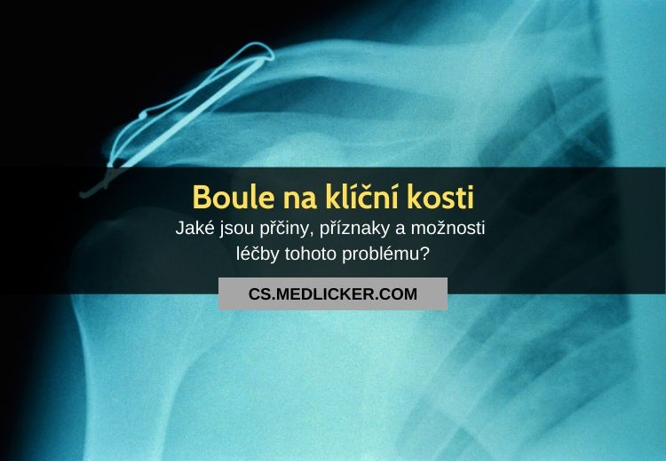 Boule na klíční kosti: nejčastější příčiny a možnosti léčby
