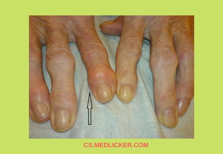 artróza prstů)