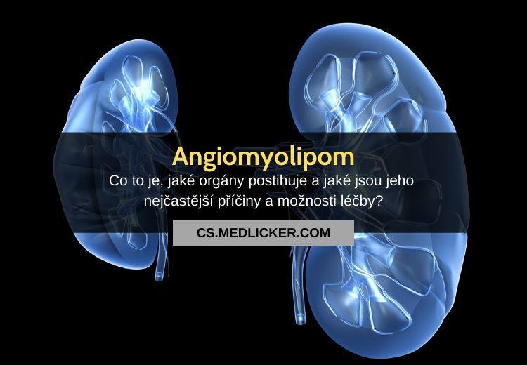 Co je angiomyolipom? Vše co potřebujete vědět!