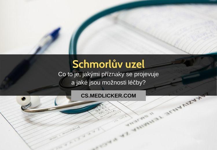 Co jsou Schmorlovy uzly? Vše co potřebujete vědět!