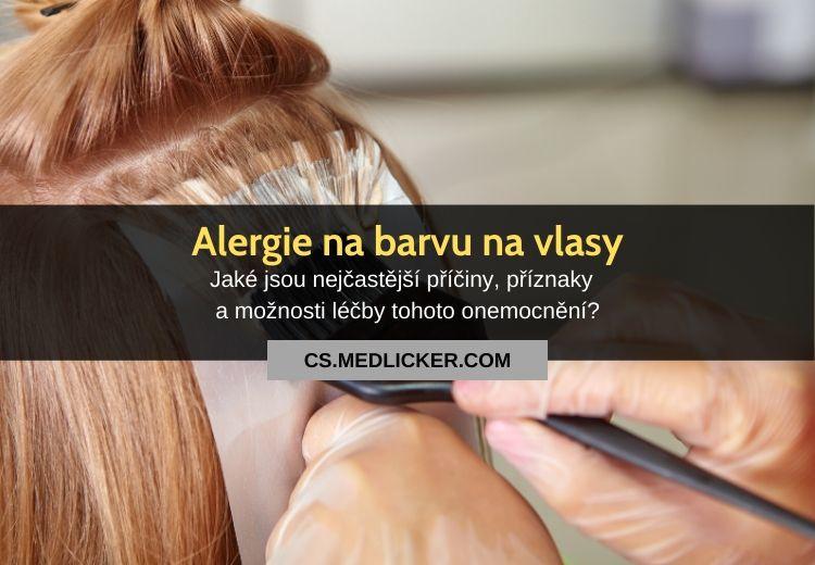 Alergie na barvu na vlasy: vše co potřebujete vědět