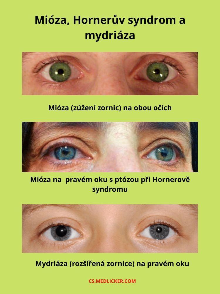 Hornerův syndrom, mióza a mydriáza