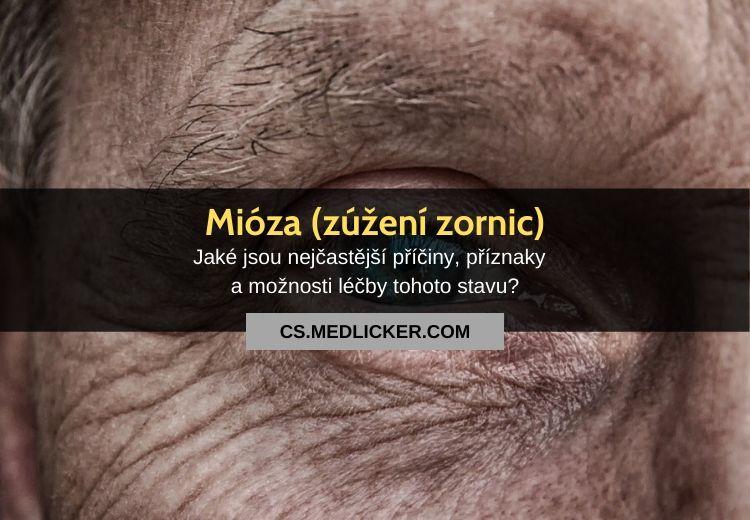 Mióza (zúžení zornic): vše co potřebujete vědět
