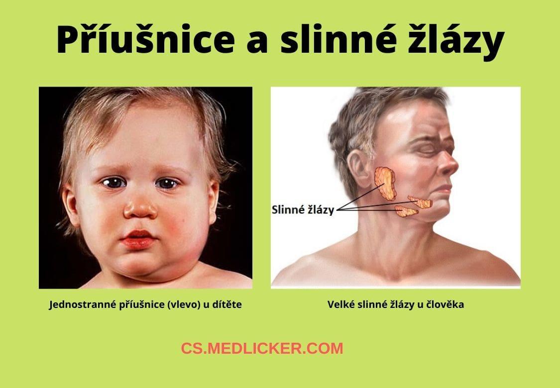 Příušnice u dítěte a velké slinné žlázy u člověka