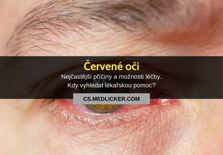 Červené oči: vše co potřebujete vědět