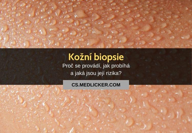 Kožní biopsie: vše co potřebujete vědět!