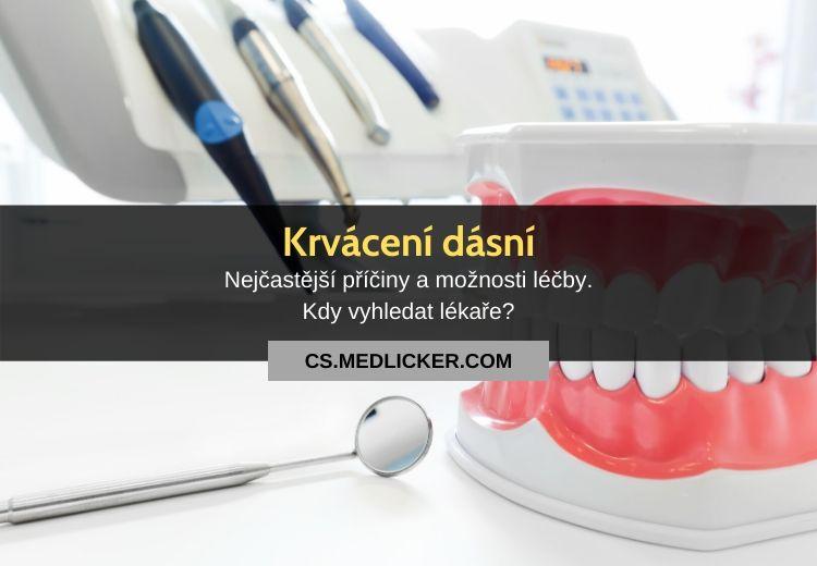 Krvácení dásní: vše co potřebujete vědět