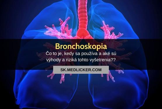 Bronchoskopia: všetko čo potrebujete vedieť!