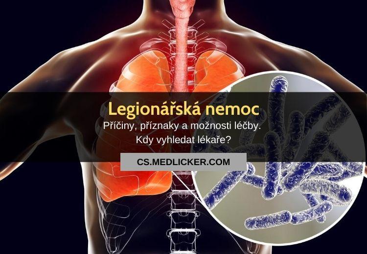 Legionářská nemoc (legionelóza): vše co potřebujete vědět